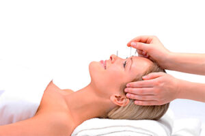 menopausa-e-acupuntura